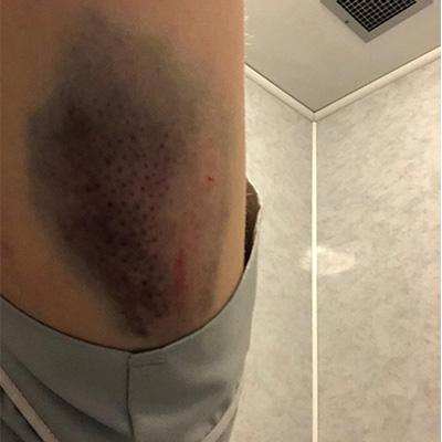 Zara's Epic Bruise